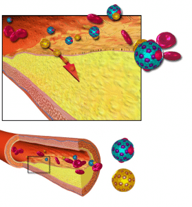 Léky na cholesterol a vedlejší účinky